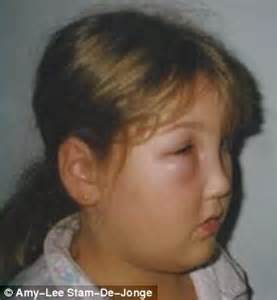 gastrointestinal conditions caused by hereditary angioedema picture 22