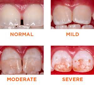 fluoride hurt my childrens teeth picture 5