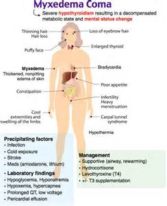 hyperthyroidism symptoms picture 2