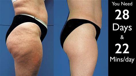 revitol cellulite solution picture 5