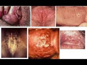 herpes simplex treatment picture 2