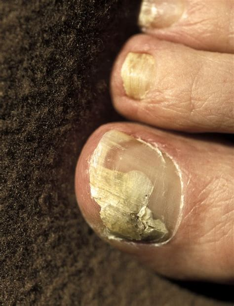 canine nail fungus picture 2
