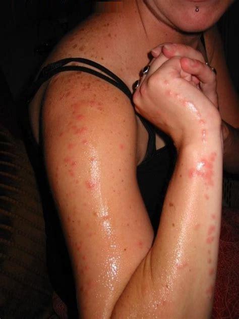cream on umbilical hernia picture 17