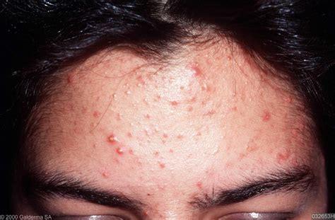acne vulgaris picture 6