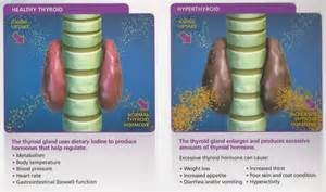 hyperthyroidism and iodine picture 1