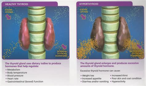 feline hyperhyroidism picture 13