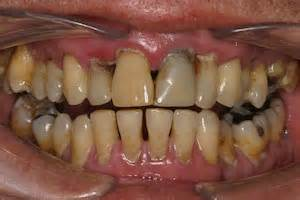 does mint snuff stain teeth picture 2