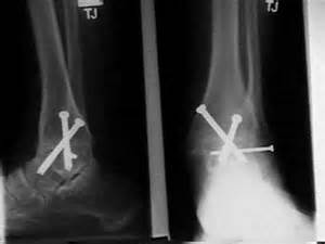 cpt code ankle subtalar joint arthroscopy picture 1
