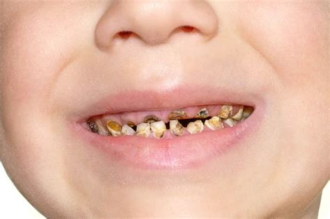 decaying teeth pictures picture 14