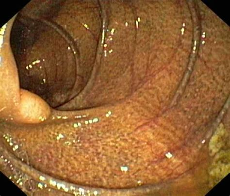 what is melanosis in the colon picture 2