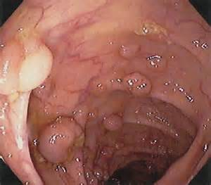 pictures of colon polyps picture 6