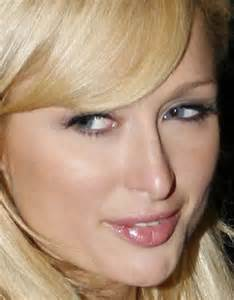 celebrities and herpes picture 17