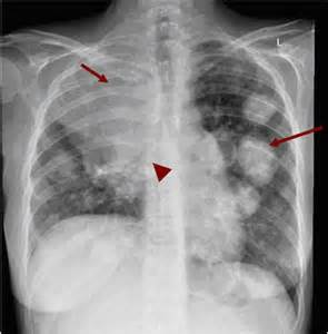 what does colon cancer xrays look like picture 5
