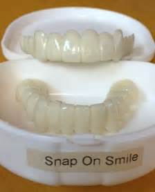cheapest snap on upper teeth picture 9