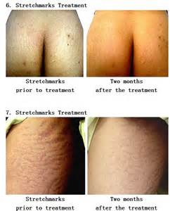 needling for stretch marks cost picture 9