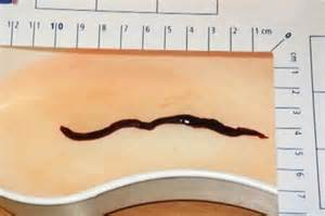 can worms get into bladder picture 1