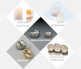 all cinds of teeth grizs gold and silver picture 10