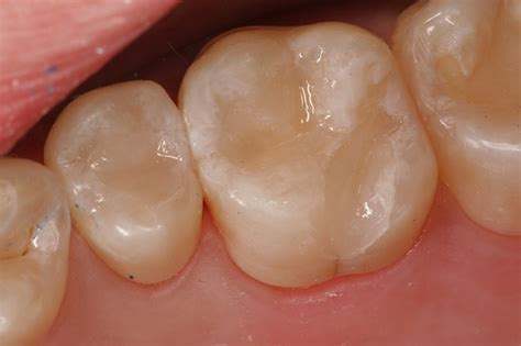 cavity cover for teeth picture 19