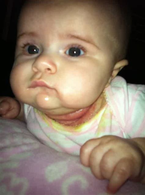 treatment for yeast rash under baby's chin picture 10