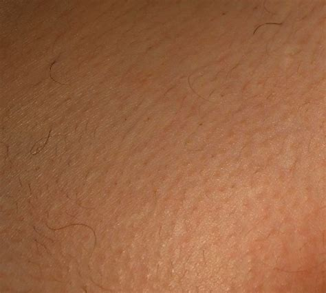 laser pubic hair removal picture 7