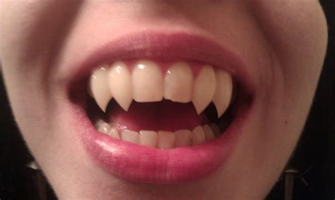 custom teeth picture 3