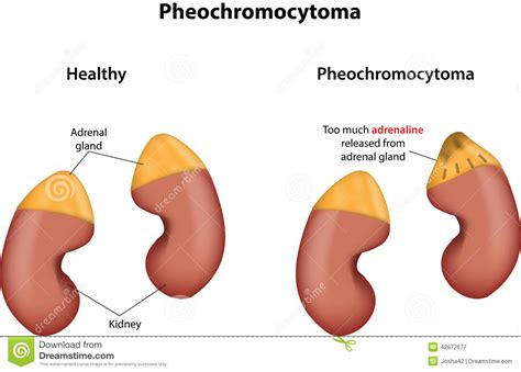 what are symptoms of bladder cancer picture 6