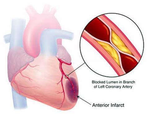 coronary heart disease picture 9