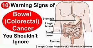 signs colon cancer picture 11