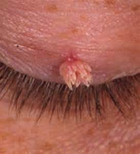hair growth from genital wart picture 1