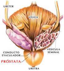 sintomas ng prostate picture 10
