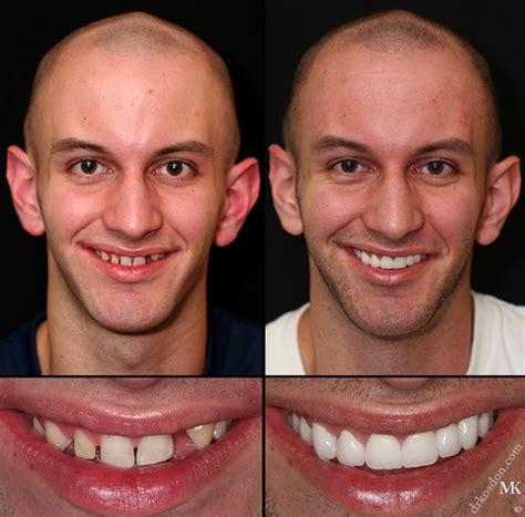 new york teeth whitening picture 3