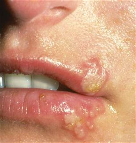 blisters on lips picture 6