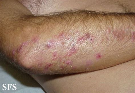 acne like rash that itches picture 11