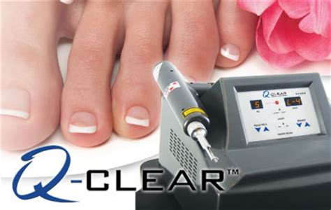 laser treatment for foot fungus in ,ar picture 9