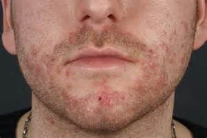 herpes simplex treatment picture 6