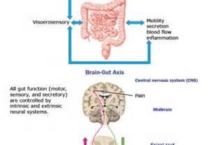 irritable bowel syndrom symptoms picture 6