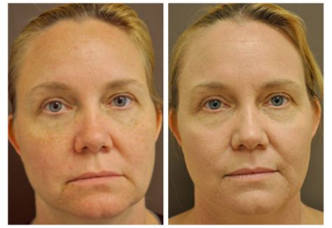 co2 laser treatment for acne scars picture 5