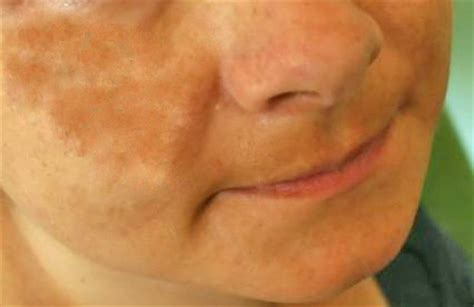 cure of skin discoloration picture 5