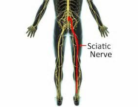 sciatic pain relief picture 3