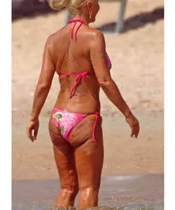 stars losing battle with cellulite picture 2