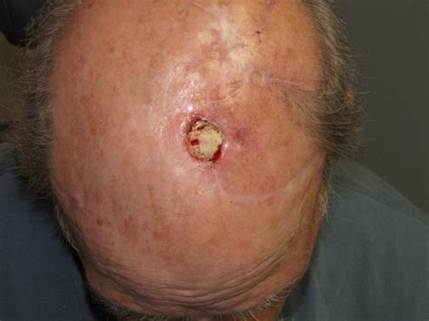 pictures of melanoma skin cancer picture 1