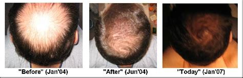 avodart hair loss results picture 6