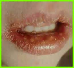 treatment of oral herpes picture 3