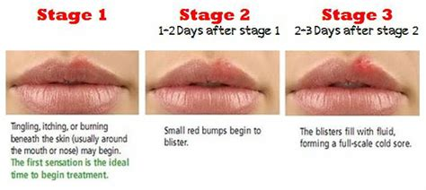 early stage pictures of herpes in women picture 4