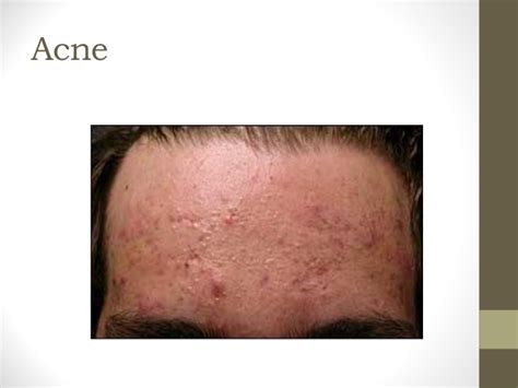 acne cyst preparation h picture 15