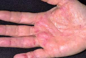 causes of changes skin condition picture 7