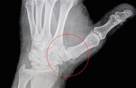 degenerative joint diseases picture 11