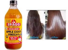 hair loss vinegar picture 2