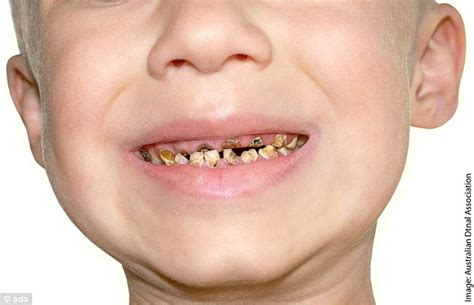 chilrens teeth picture 1