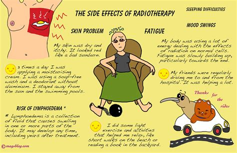 acne radiation side effects picture 3